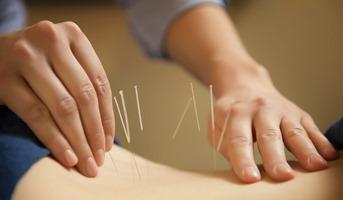 acupunctor